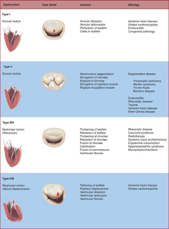 Surgical Echocardiography of the Mitral Valve - Image Source