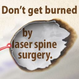 1000 Ideas About Spine Surgery On Pinterest Spinal
