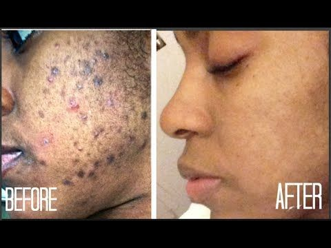 Skincare routine for acne and hyperpigmentation