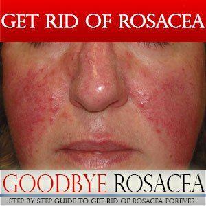 Goodbye Rosacea