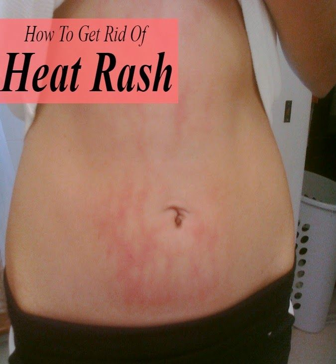 How To Get Rid Of Heat Rash « Tips Park