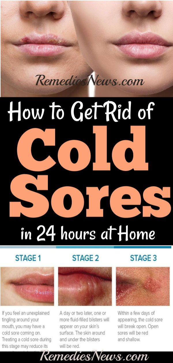 891a3759a3b1b263fc7294e1b1dbf36d - How To Get Rid Of Cold Sores Before They Appear
