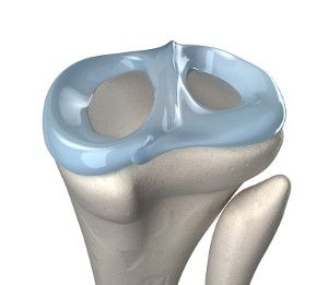 New Device for Repair of Knee Meniscus