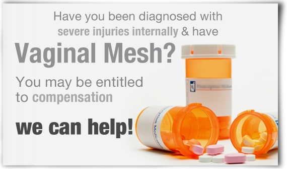If you had transvaginal mesh dental implanted as a treatment for urinary tension urinary incontinence, pelvic body organ prolapse or one more medical disorder and you are now experiencing issues therefore,