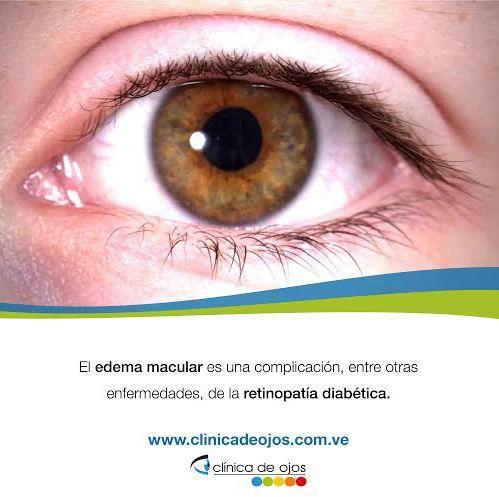 241 best images about Cuida tu Salud Visual on Pinterest