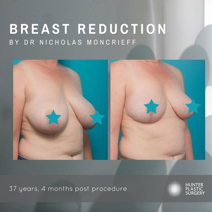 Breast size weighing you down? This 37 year old woman came to see Dr Moncrieff suffering neck pain and tension headaches due to her large bust size. Dr Moncrieff performed a breast reduction and lift taking the patient down 3 cup sizes! The second photo was taken 4 months after surgery.  The total out of pocket cost for this procedure starts at $10,000.  For more information please visit the website (link below)  Cosmetic surgery Newcastle  Plastic surgery Newcastle