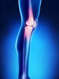 http://orthopaedics.manipalhospitals.com/total-knee-replacement.html Total Knee joint replacement surgery is permanent procedure if the knee joint is severely damaged. Manipal hospital provides latest arthroplasty treatment in bangalore for diagnosing bone problems.