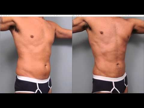 Liposuction for Men | Dr. Sterry