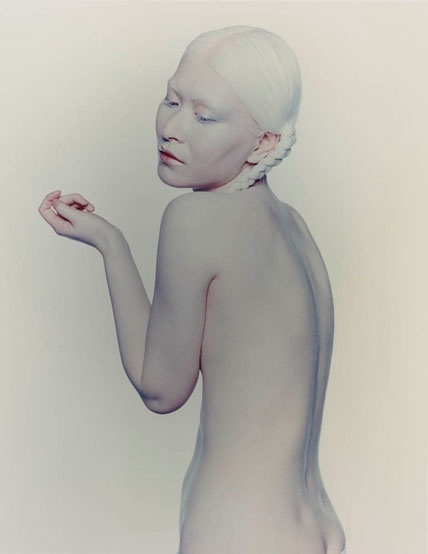 Pics of nude albinos