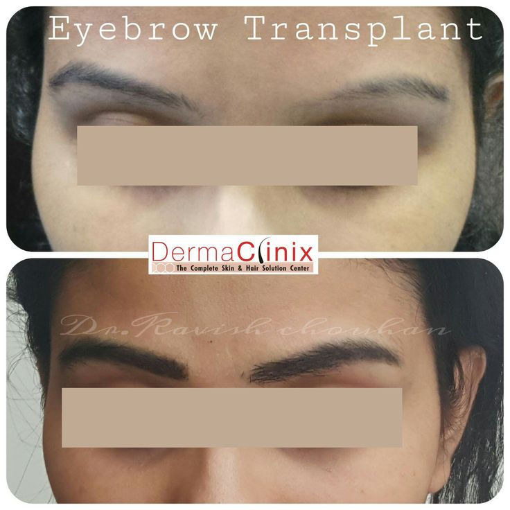 Eyebrow transplant result, by renowned Dr. Kavish Chauhan (MD-AIIMS, MISHRS-USA) at DermaClinix.