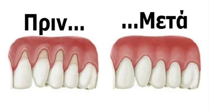 Καμιά φορά, ο ιστός γύρω από τα ούλα φθείρεται και φαίνεται σαν να ξεθωριάζουν τα ούλα σας. Εκτίθεται μεγαλύτερη επιφάνεια των δοντιών, το τέλειο μέρος για την ανάπτυξη βακτηρίων. Επιπλέον, μπορεί να προκαλέσει πόνο και