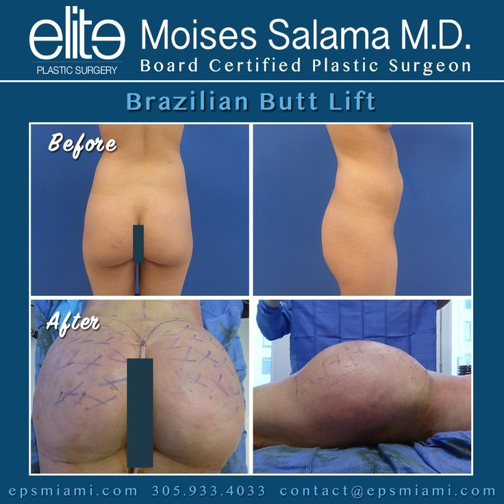 Immediate post-op #bbl results by Dr. Salama. A #B…  #AestheticButtockSurgical…