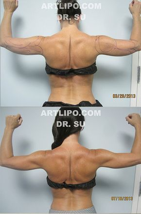 Sexy, Beautiful, Toned Arms in ONE Day, No working out! New Revolutionary Arm Liposuction procedure exclusively by innovator DrSu at #Artlipo! CALL us TODAY ☎️813-886-9090 or visit Artlipo.com to schedule a complimentary consultation! Arm-Lift-Liposuction-Tampa-Sarasota-Orlando.