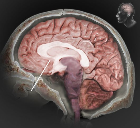 the areas affected by a traumatic brain injury tbi