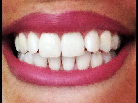 Dents blanches, comment fabriquer son dentifrice bio en 1 min ! Sans FLUOR, sans produits CHIMIQUES