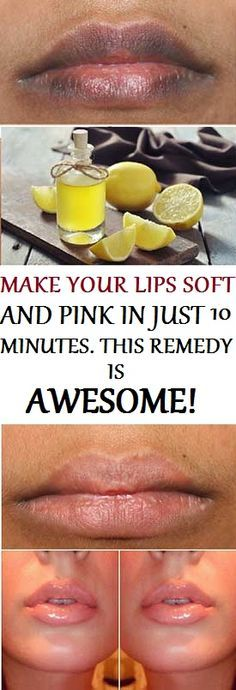 GET YOUR SOFT AND ROSY LIPS BACK IN JUST 10 MINUTES WITH THIS AWESOME REMEDY