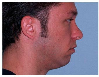 Patient #5 (Before): Chicago Chin Implant for Men - http://www.goldcoastplasticsurgery.com/photo-gallery/facial-implant-photos/facial-implants-patient-5/