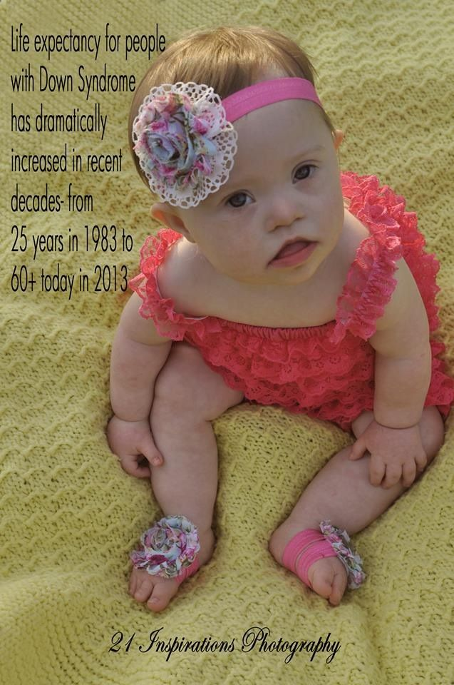 Day 5  Life expectancy for people with Down syndrome has increased dramatically in recent decades - from 25 in 1983 to 60 today.