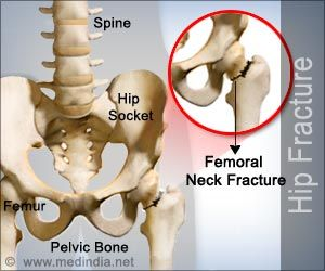 Hip Fracture | Fracture of the Hip - Causes Symptoms Risks Treatment | Medindia