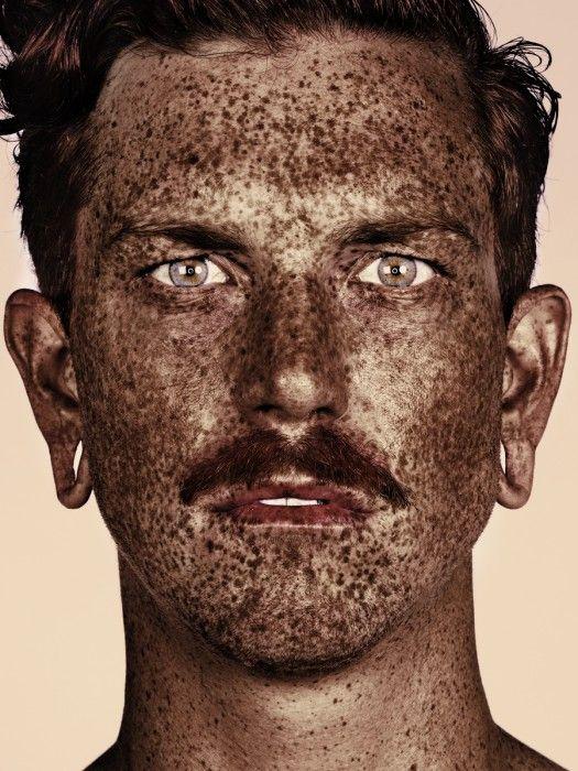 Η ομορφιά των ανθρώπων με φακίδες με τη ματιά του Brock Elbank