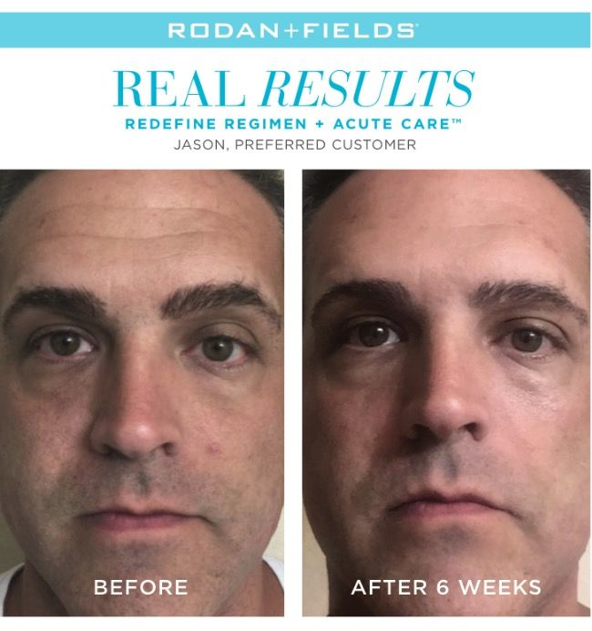 "Men LOVE taking care of their skin too! Here's what Jason has to say about his results  "" I have been contemplating seeing a dermatologist for the expression lines on my forehead. But since I started using Rodan + Fields, I am no longer considering it."" Did you know Dr. Katie Rodan and Dr.Kathy Fields are dermatologists who practice in California!! Yes! They created this line to help their patients and us to combat the signs of aging....and now you can do this all from home!"