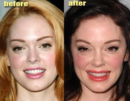 celebrity surgery gone wrong | When the lens captures unwanted details (with images) · mecabounce ...