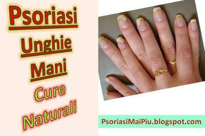 Psoriasi Ungueale Cura Naturale: psoriasi alle unghie rimedi naturali. Psoriasi delle unghie trattamento naturale per curare la psoriasi delle unghie.