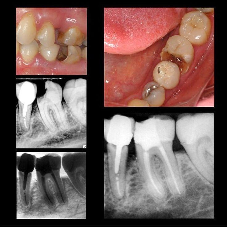 #Endodontics #Endodoncia #RootCanal #Endodontia #Endo #Root #Dentistry #Odontologia #Dentist #EndoLovers #Odontolovers Paciente con pulpitis irreversible asintomática en el 36 tratado en una visita. Programada repetición de tratamiento en el 35. by drjcrespo Our Root Canals Page: http://www.myimagedental.com/services/general-dentistry/root-canals/ Other General Dentistry services we offer: http://www.myimagedental.com/services/general-dentistry/ Google My Business…