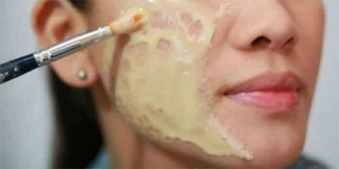 Rimpels, littekens en vlekken op je huid kunnen invloed hebben op je zelfvertrouwen, dus je zou ze kunnen proberen te elimineren van hen op allerlei manieren. Je zou uiteindelijk komen