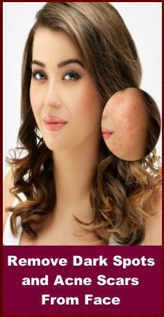 Remove Dark Spots and Acne Scars From Face –