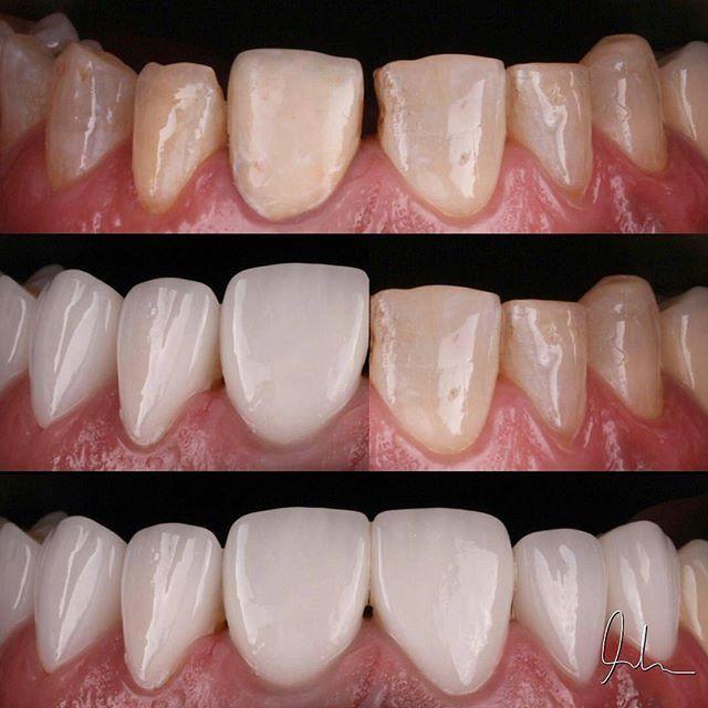 Case from @drmuntheralherani -  Power of Laminate Veneers | yesterday case  #veneers #smileartist  #smilestylist #smile #hollywoodsmile #ucla #cali #california #dentista #dentalhumor #dentalesthetics #dentist #dentistry #odontologiaestetica #odontologia #odonto #zahnmedizin #zahn #estheticdentistry #esthetics #beautiful #photography #style #lips #teeth #teethwhitening