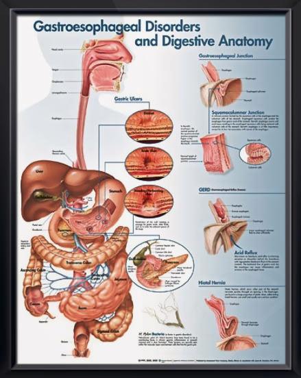Gastroesophageal Disorders and Digestive Anatomy poster illustrates digestive anatomy and disorders like Barrett's esophagus, GERD, hernia, ulcers. Gastroenterology for doctors and nurses. <3