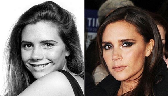 Victoria Beckham Nose Job Plastic Surgery Before And After