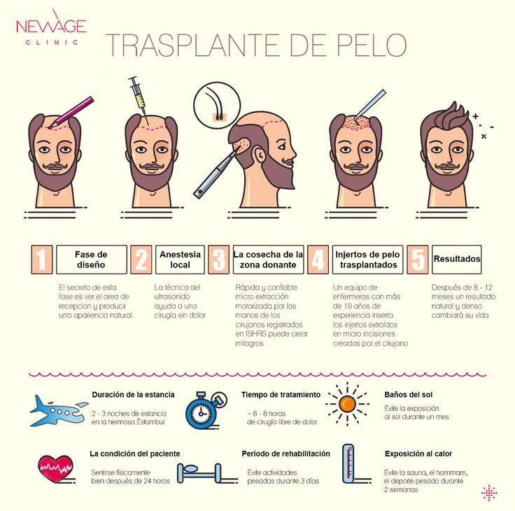 El trasplante de cabello, en el sentido más básico, es el traslado del los folículos pilosos que permanecen genéticamente de por vida de la piel del área de entre las orejas de la parte posterior de la cabeza y colocarlos en la parte que se quiera cubrir de la parte delantera.       para más información WhatsApp: +90 5434704709    #TrasplanteDeCabello #Calvicie #TrasplanteCapilar #TecnicaFUE #AlopeciaDeCejas #estética #cirugíaplástica #pérdidadelcabello #pérdidadecabello #trasplanted