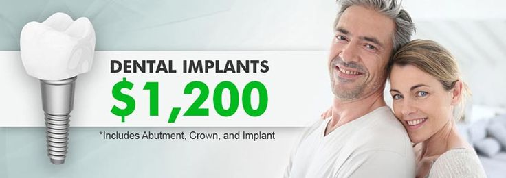 Cost of Dental Implants in Whittier and Los Angeles