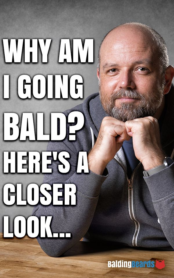 17 Best Images About Balding 101 On Pinterest Male