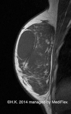 Case 005: Sclerosing Fibroadenoma: MRI T1WI