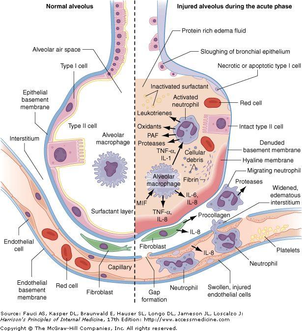 Thin basement membrane disease