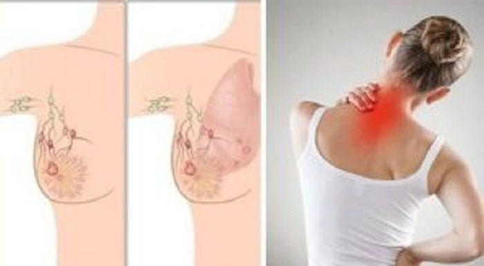 Olho vivo: 5 sinais de câncer de mama que quase todas as mulheres ignoram! | Cura pela Natureza