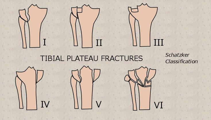 28 best voeten anatomie images on pinterest pedicure - Tibial plafond fracture classification ...