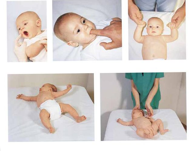 infant reflexes This page includes the following topics and synonyms: newborn reflexes, primitive stepping reflex, rooting reflex, moro reflex, startle reflex.