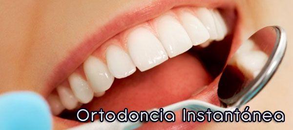 Sabes qué es la ORTODONCIA INSTANTÁNEA http://www.diginota.com/ortodoncia-instantanea/ Espetacular el trabajo de Ortodoncia Instantánea  hecho por  @Vitalden contactarla por twitter