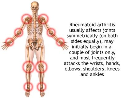 Polymyalgia Rheumatica – Causes, Symptoms, Diagnosis, Treatment and Ongoing care - Polymyalgia rheumatica (PMR) is a clinical syndrome characterized by pain and stiffness of the shoulder and hip girdles and neck:    Read more: http://health.tipsdiscover.com/polymyalgia-rheumatica-causes-symptoms-diagnosis-treatment-ongoing-care/#ixzz2laly55EO