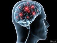 Diseases Above the Neck - Alzheimer's    http://www.alzheimersreadingroom.com/2013/02/diseases-above-neck-alzheimers.html