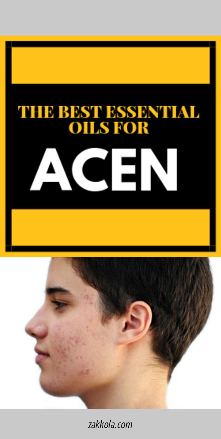 Learn about acne. Simply click here to learn more…