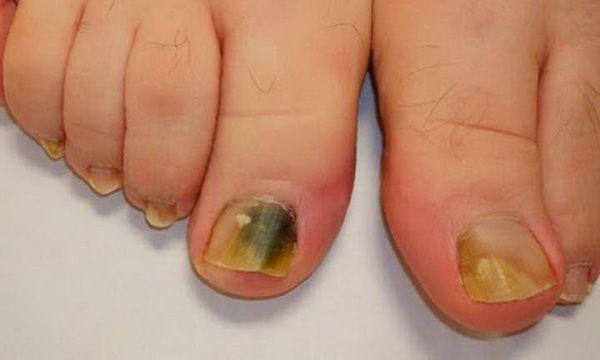 Ce remède de 3 Ingrédients élimine la mycose des ongles définitivement...Actuellement la majorité souffre de la mycose des ongles ou onychomycose . Cette affection est accompagnée...Voici ce que vous avez besoin...