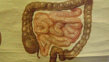 Un lien surprenant entre la polyarthrite rhumatoïde et les intestins