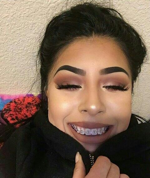 How Do Eat Food With Ur Braces