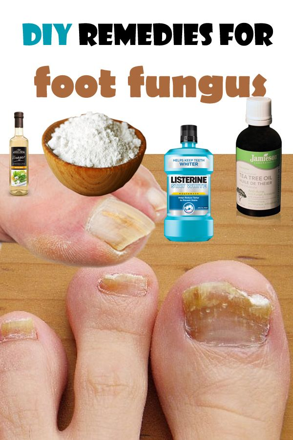 Natural do it yourself remedies in order to get rid of foot fungus.