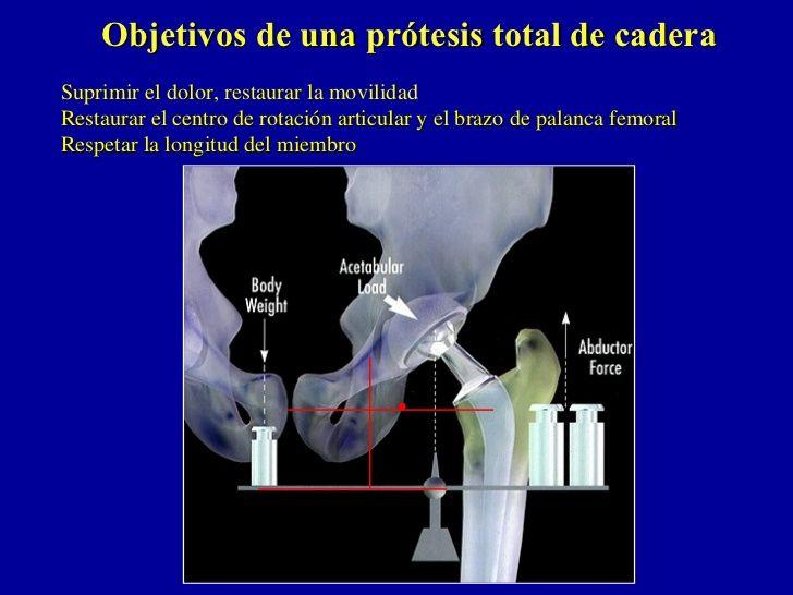 Objetivos de una prótesis total de caderaSuprimir el dolor, restaurar la movilidadRestaurar el centro de rotación articula...